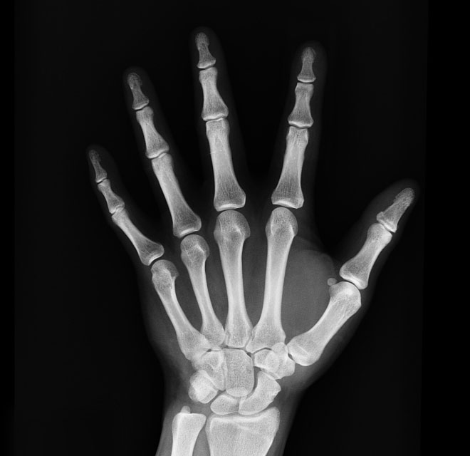 X-Ray of hand, Radiology in Montana